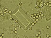 Cristal triple amónico magnésico