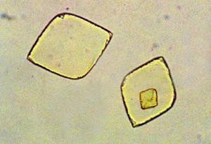 Cristales de ácido úrico