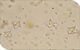 Cristales oxalato de calcio