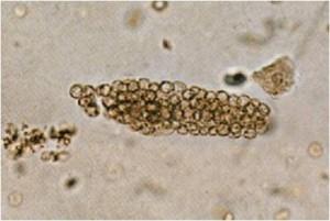 cilindro eritrocitario